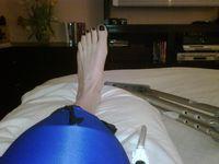 MB jpg knee surgery